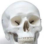 Skull Shape Dr Barry Eppley Indianapolis