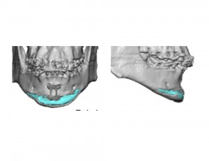 Sliding Genioplasty with Chin Implant 3D CT scan Dr Barry Eppley Indianapolis