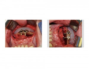 Sliding Genioplasty with Chin Implant intraop Dr Barry Eppley Indianapolis