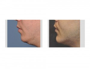 Sliding Genioplasty with Chin Implant result Dr Barry Eppley Indianapolis