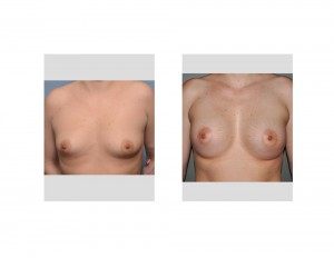 Stretch Marks in Breast Augmentation Results front view Dr Barry Eppley Indianapolis