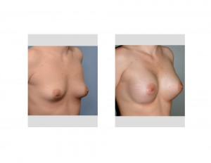 Stretch Marks in Breast Augmentation Results oblique view Dr Barry Eppley Indianapolis