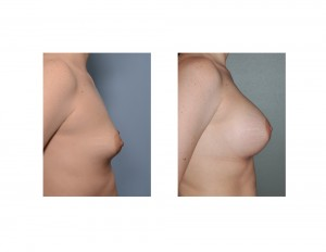 Stretch Marks in Breast Augmentation results side view Dr Barry Eppley Indianapolis