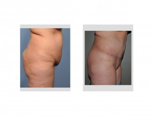 Tummy Tuck with Abdominal Liposuction Dr Barry Eppley Indianapolis