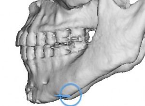 3D CT Scan of Genioplasty Stepoff Deformity Dr Barry Eppley Indianapolis