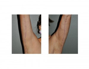 Armlift Scars Dr Barry Eppley Indianapolis