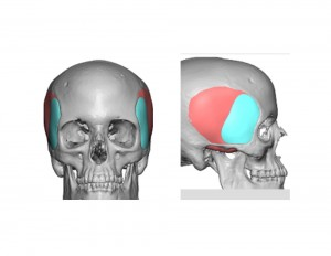 Extended Anterior Temporal Implant Dr Barry Eppley Indianapolis
