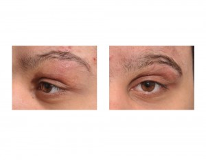 Eyebrow Transposition Flap Dr Barry Eppley Indianapolis