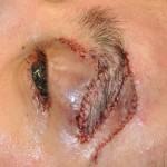 Eyebrow Z-plasty Dr Barry Eppley Indianapolis