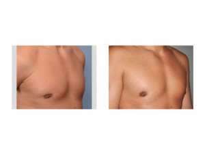 Fat Injections for Gynecomastia Reduction Retraction result oblique view