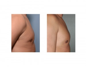 Fat Injections for Gynecomastia Reduction Retraction result side view
