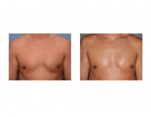 Fat Injections for Gynecomastia Reduction Retractrion result front view Dr Barry Eppley Indianapolis