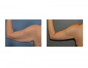 Left Armlift result back view Dr Barry Eppley Indianapolis