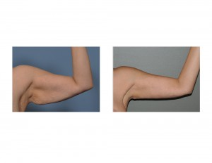 Left Armlift result front view Dr Barry Eppley Indianapolis