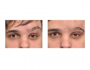 Left Eyelid Reconstruction with Transposition Flap Dr Barry Eppley Indianapolis