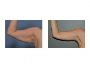 Right Armlift result front view Dr Barry Eppley Indianapolis