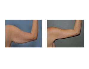 Right Armlift results back view Dr Barry Eppley Indianapolis