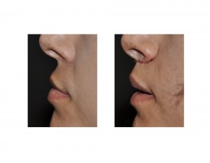 Subnasal Lip Lift immediate result side view