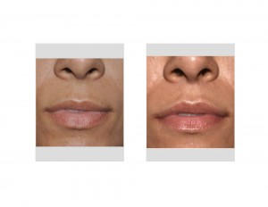 Subnasal Lip Lift long-term results front view Dr Barry Eppley Indianapolis