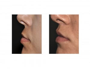 Subnasal Lip Lift long-term results side view Dr Barry Eppley Indianapolis