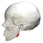 jaw angle release for jaw angle implants