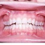 oral vestibule