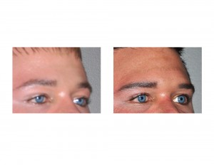 Brow Bone Implant result oblique view Dr Barry Eppley Indianapolis