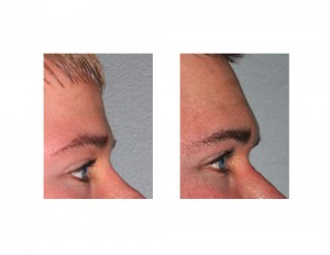 Brow Bone Implant result side Dr Barry Eppley Indianapolis