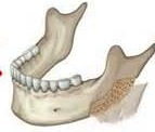 Jaw Angle Ostectomy