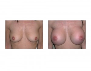 Large Breast Augmentation in Petite Female result front view Dr Barry Eppley Indianapolis