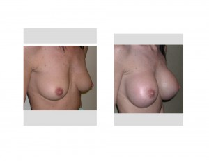 Large Breast Augmentation in Petite Female result oblique view Dr Barry Eppley Indianapolis
