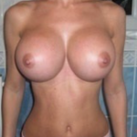 Large Breast Implants Dr Barry Eppley Indianapolis