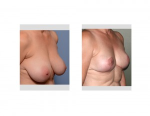 Large Breast Reduction result oblique view