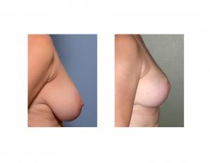 Large Breast Reduction result side view Dr Barry Eppley Indianapolis
