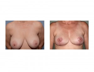 Large Breast Reduction results front view