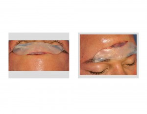 Mid-Forehead Incision for Brow Bone Implant Dr Barry Eppoley Indianapolis