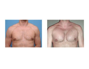 Pectoral Implant results front view Dr Barry Eppley Indianapolis