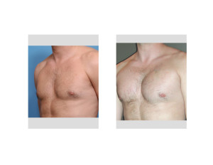 Pectoral Implants result oblique view Dr Barry Eppley Indianapolis