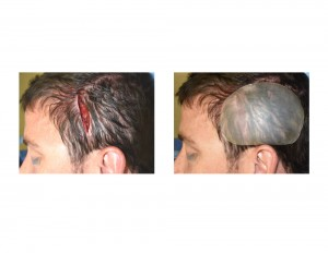 Posterior Temporal (Head Widening) Implants intraop placement Dr Barry Eppley Indianapolis