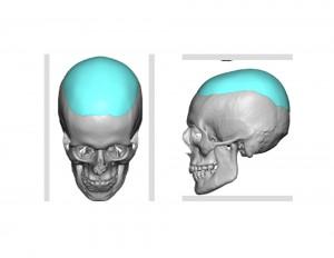 Skull Cap Imnplant Design Dr Barry Eppley Indianapolis