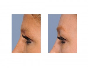Skull Implant Browlift result side view