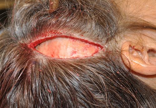 Migraine Surgery Archives