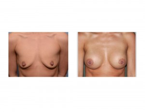 small breast augmentation result front view