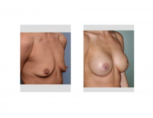 small breast augmentation result oblique view