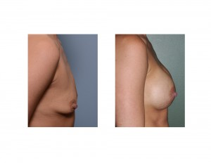 small breast augmentation result side view