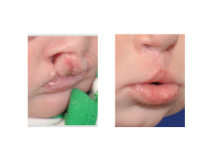 Bilateral Cleft Lip Repair oblique view Dr Barry Eppley Indianapolis