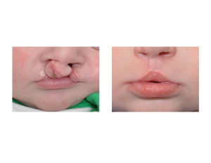 Bilateral Cleft Lip Repair result front view Dr Barry Eppley Indianapoliis