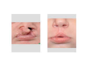 Bilateral Cleft Lip Repair submental view Dr Barry Eppley Indianapolis