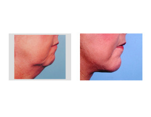Combined Facelift and Chin Implant result