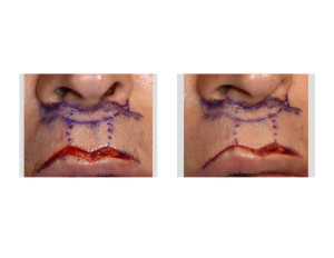 Cupid's Bow Augmentation Surgery Technique Dr Barry Eppley Indianapolis